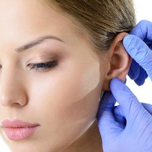 Ear Pinning/Octoplasty