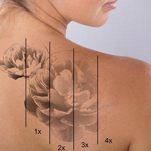 Tattoo/Tattoo Removal Scars